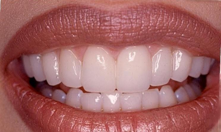 Porcelain Veneers and Smile Makeover