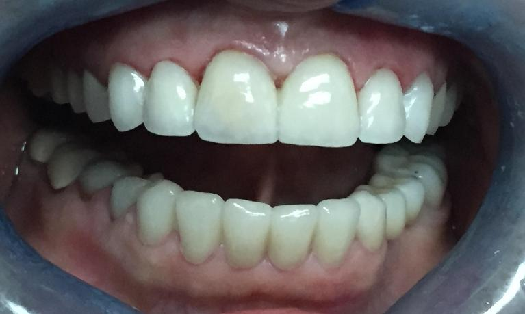 Porcelain-Veneers-and-Smile-Makeover-After-Image