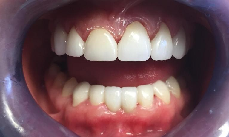 Zirconia-Crown-and-Bridge-Smile-Makeover-After-Image