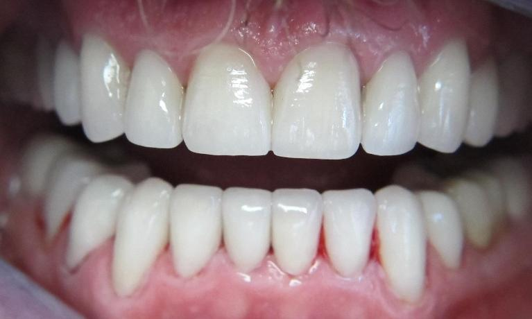 Porcelain-Veneers-Smile-Makeover-and-Zirconia-Crowns-After-Image