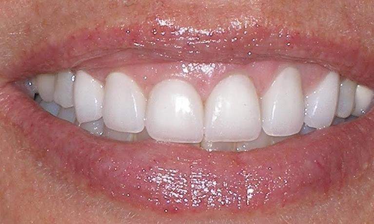 Porcelain-Veneers-with-missing-lateral-incisor-After-Image