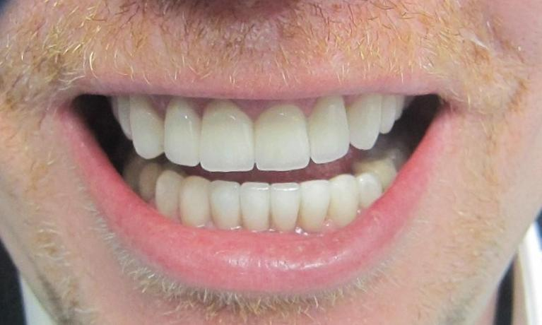 Zirconia-Crowns-Smile-Makeover-After-Image