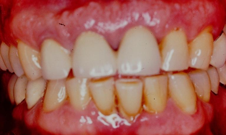 Porcelain-Veneers-and-Smile-Makeover-Before-Image