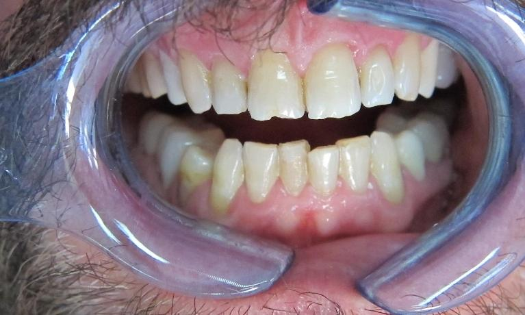 Porcelain-Veneers-Smile-Makeover-and-Zirconia-Crowns-Before-Image