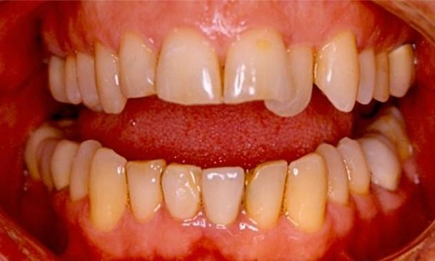 Porcelain-Veneers-Smile-Makeover-and-PorcelainCrowns-Before-Image
