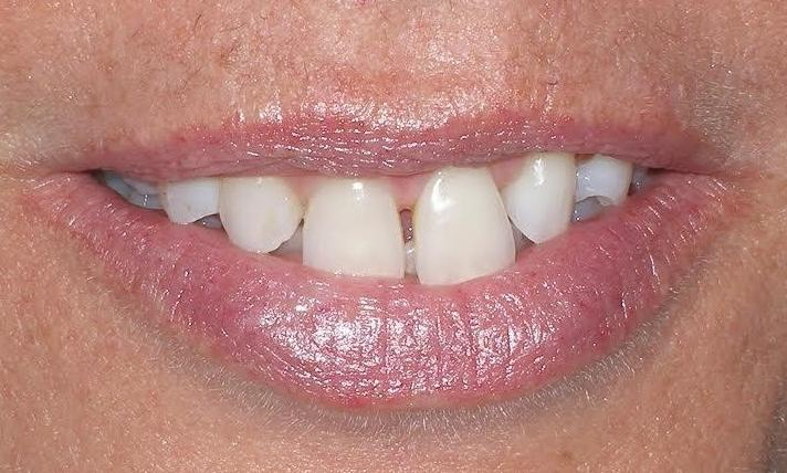 Porcelain-Veneers-with-missing-lateral-incisor-Before-Image