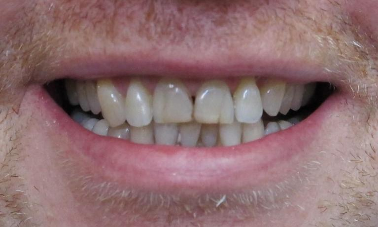 Zirconia-Crowns-Smile-Makeover-Before-Image